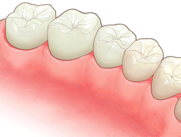むし歯治療後の素材にもこだわります