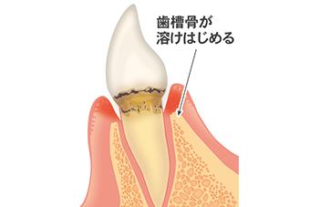 歯周病について