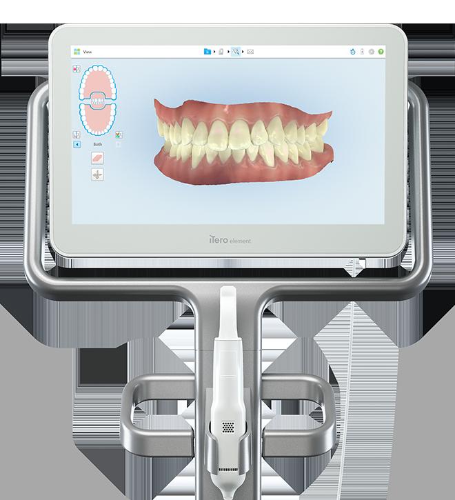 AIによる歯並び診断